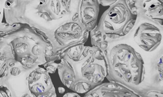 The Procter & Gamble Company  | Sandia National Laboratories - [closeup] Micro-CT of open cell foam structure (absorbent material)